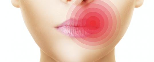 Aciclovir le médicament pour traiter l'herpès