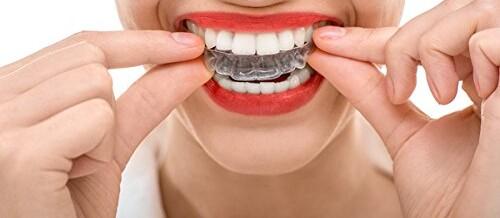 Comparatif des meilleurs appareils dentaire anti ronflement avec test produit