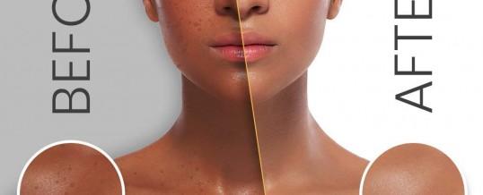 Comparatif des meilleurs produits pour blanchir la peau avec test produit